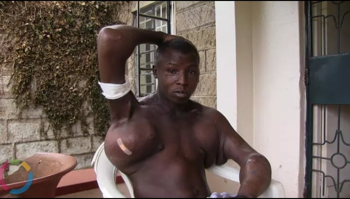 Injuction Goes Wrong; Body Builder Cries For Help