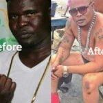 Black to white: Top celebrities accused of bleaching