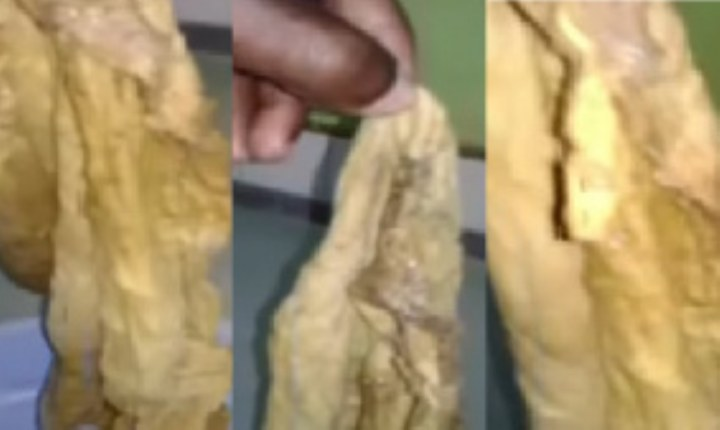 Ridge Hospital: Doctors leave huge towel in woman's tummy for 9 months after C-section (Video)